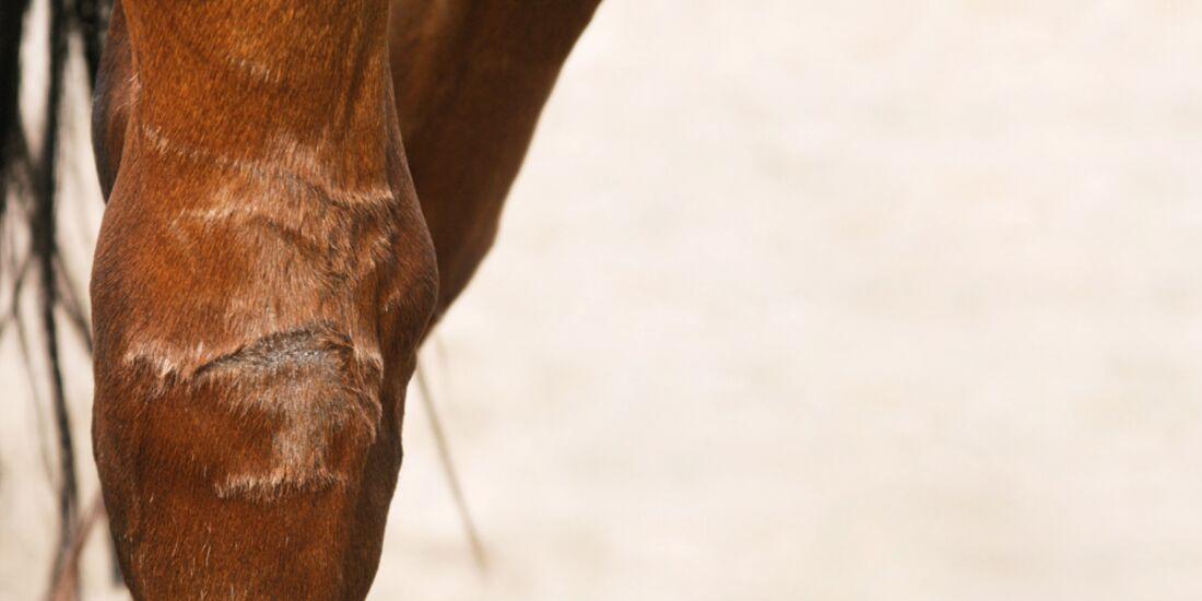 CAV Narben Medizin Haut Fell Verletzungen