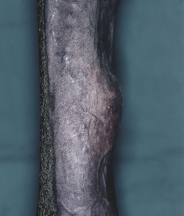 CAV Symptom-Lexikon Überbeine